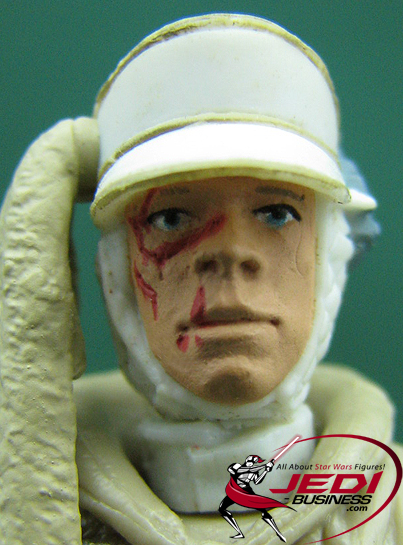 Luke Skywalker Hoth Attack Star Wars SAGA Series